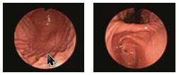 http://www.bimk-cardio.ru/images/oly_endoscopes/fibro/gif-xpe3im.jpg
