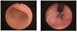 http://www.bimk-cardio.ru/images/oly_endoscopes/fibro/pcf-e3im.jpg